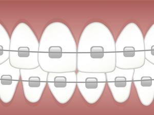 Zubna ortodoncija